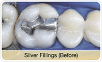 Flap & Gum Surgeries